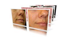 gallery scar treatment